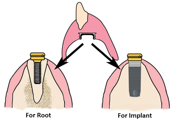 kerator root overdenture system